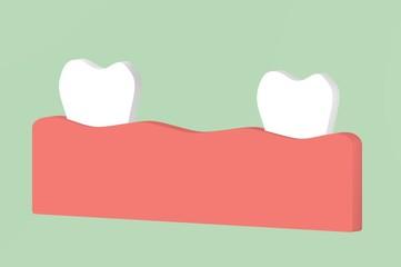 missing tooth, space between teeth in mouth