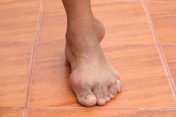 Close-up gout on a human foot