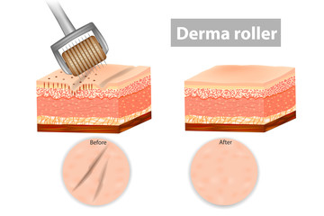 Derma roller or Meso-roller. Skin before and after application Roller for mesotherapy. Vector illustration