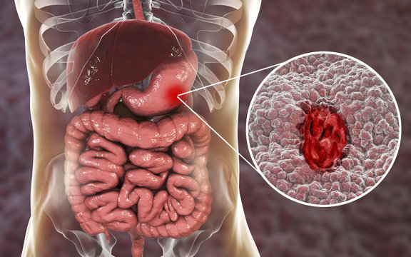 Gastric ulcer. Mucosa of stomach with ulcer and anatomy of human digestive system. 3D illustration