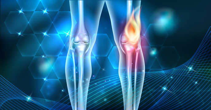 Knee pain abstract joint burning design