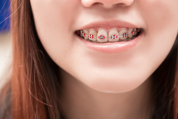 Asian woman smiling with dental braces.