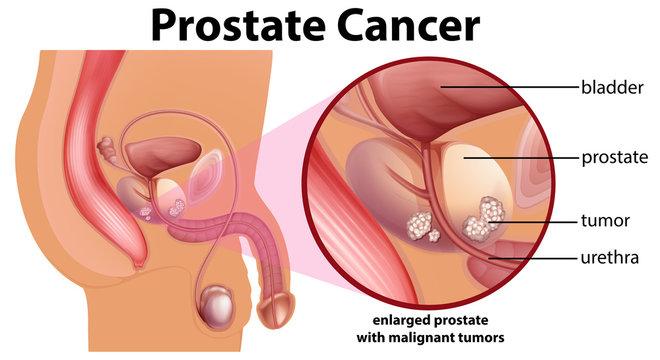 Diagram of prostate cancer