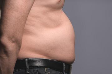 man. fat. abdomen.