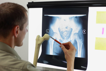 Professional with femur bone model watching image of hip - joint,  pelvis at x-ray film viewer. Diagnosis,treatment planning