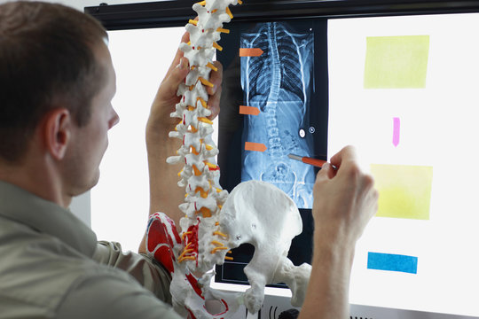 expert with  model  of spine watching image of chest  at x-ray film viewer. 