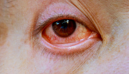 Close up of one annoyed red blood eye of male affected by conjunctivitis or after flu, cold or allergy.