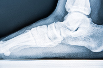 X-ray human foot with flatfoot, close-up
