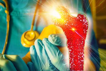 Bone research concept bone cancer and stem cells treatment Osteoporosis Bone marrow bone problems diseases 3D rendering