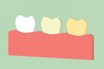 white to yellow tooth, teeth whitening concept