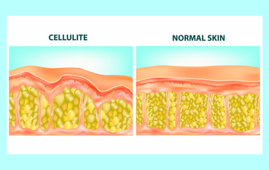 Illustration of skin cross section of Cellulite formation. Vector diagram.