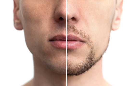 face with a beard and without