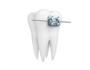 Tooth with braces isolated on white. Health, medical, tooth doctor, dental clinic or dentist symbol. 3d render