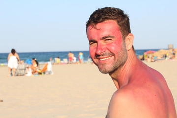 Man getting sunburned at the beach