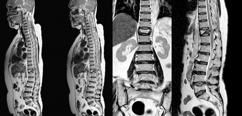 MRI THORACIC-LUMBAR Spine:Moderate pathological compression fracture of T12 level vertebral body.