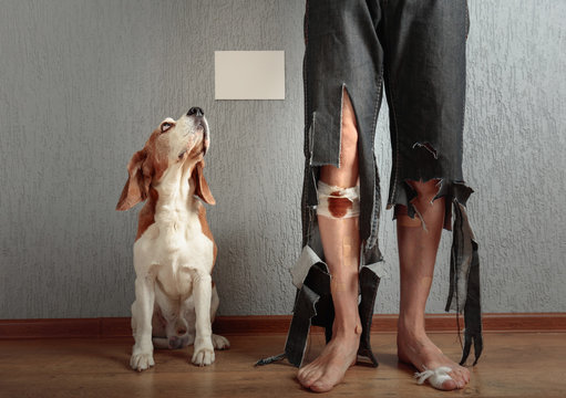 Beagle and his owner in torn pants and bitten feet.