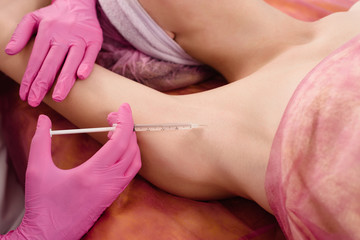 Doctor making intramuscular injections in armpit against hyperhidrosis