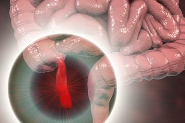 Acute appendicitis, 3D illustration showing inflammed appendix on the cecum