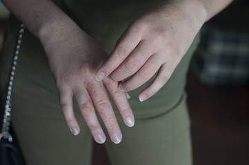 Scabies in hands. Dermatology problem. Infection