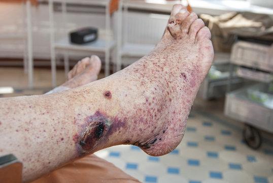 Hemorrhagic vasculitis. Ulcer on the skin of the foot.