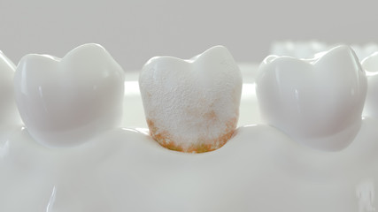 strong plaque on a molar tooth - 3D Rendering
