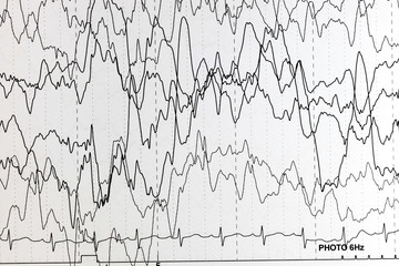 EEG of the pediatric patients, problems in the electrical activity of the brain.Abnormal EEG.