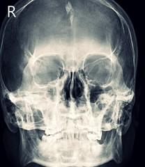 X-ray Any Positioning