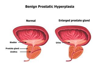 benign-prostatic-hyperplasia