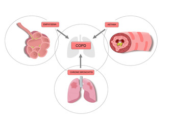 COPD disease (acronym for chronic obstructive pulmonary disease), a combination of emphysema, asthma and chronic bronchitis