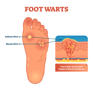 Foot warts vector illustration. Medical scheme with solitary and mosaic warts. Close-up cross section with wart and its own supply of blood and nerves.