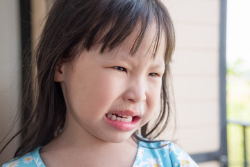 Little asian girl crying with running nose