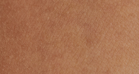 Cells on human skin