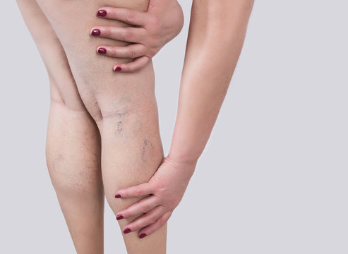The varicose veins on a legs of woman