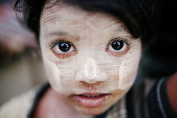 A Rohingya refugee child with thanaka paste is seen in Cox's Bazar