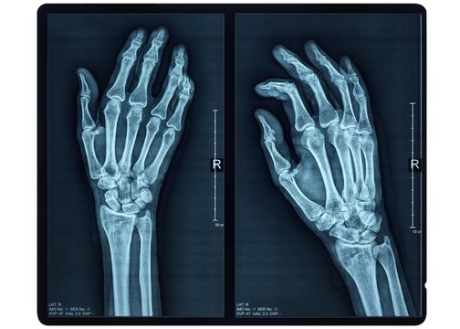 Hand X-ray of an adult female