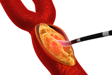 Cholesterol plaque in artery. Removing plaque