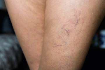 Ugly small veins are visible on the female leg.
