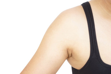 Women fat and problem black armpit on white background for skin care and beauty concept