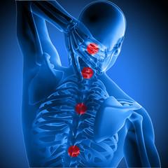 3d medical figure holding  neck