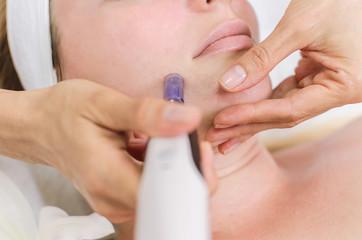 Dermapen spa chin treatment