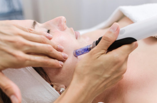 dermapen spa treatment