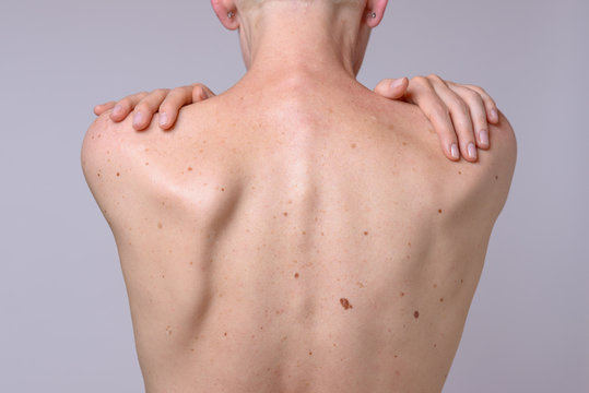 The back of a woman with many liver spots