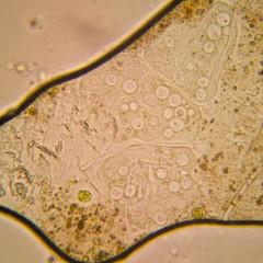 Fresh pond water plankton and algae at the microscope. Vorticella convallaria