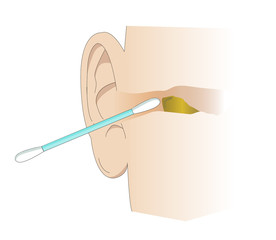 Illustration of the ear canal being cleaned with a cotton swab. Tool for cleaning wax and personal care of the ears. Removing cerumen of the ear.