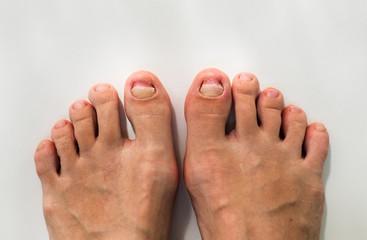 injured nail Thumb