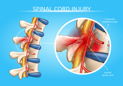 Human Spinal Cord Injury Anatomical Vector Scheme