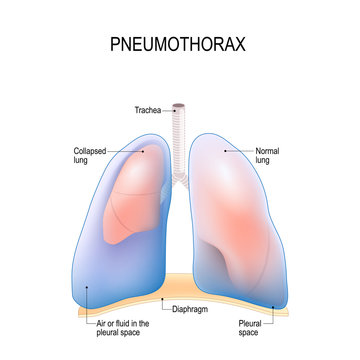 pneumothorax. Collapsed lung.