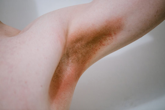 A man with a skin disease in the armpit area. Prickly heat.