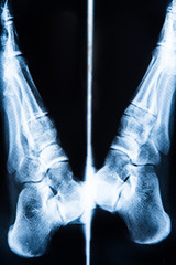 X-ray pictures of human foot bones