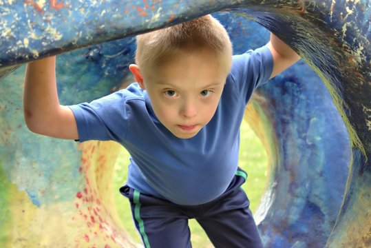 Defect,childcare,medicine and people concept- young boy with a down syndrome who is playing in a park.